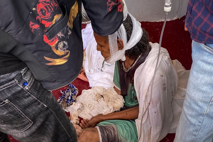 An elderly woman who fled to the city of Axum in the Tigray region of Ethiopia to seek safety sits with her head bandaged aft