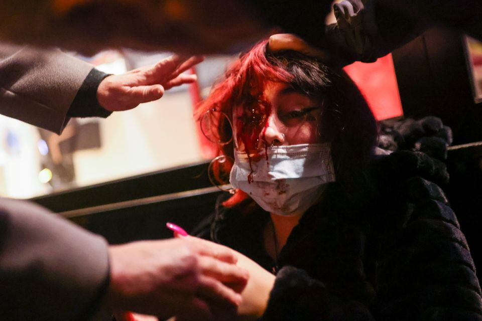 SENSITIVE MATERIAL. THIS IMAGE MAY OFFEND OR DISTURB A woman is hurt during a protest in support of Catalan...