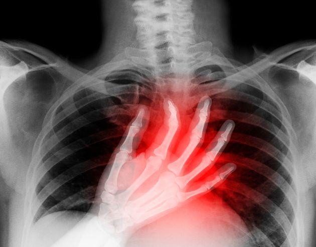 한 환자가 코로나19에 감염된 폐를 이식받고 상태가 악화돼 세상을 떠난 사례가 발생했다 (연구