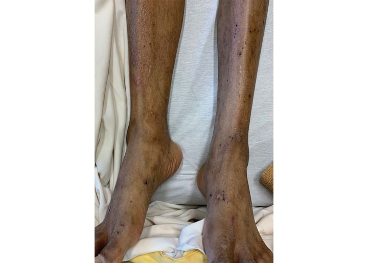 Lesions mark the legs of a 48-year-old Winnipeg man with endocarditis due to Bartonella quintana. The photo, supplied to the Canadian Medical Association Journal, shows that unlike bedbugs, body lice bites do not follow sock or belt lines where pressure is applied to the body.