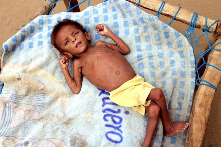 Meshaal Mohammad, 4, weighs just 20 pounds due to acute malnutrition. He is currently staying at a camp for the internally di