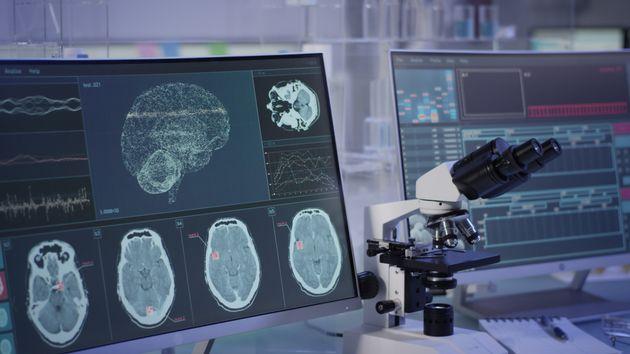 Le Chili veut légiférer pour protéger le cerveau de ses citoyens contre l'usage futur de nouvelles technologies...