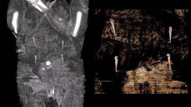 En passant la momie au rayon X les scientifiques polonais ont découvert un