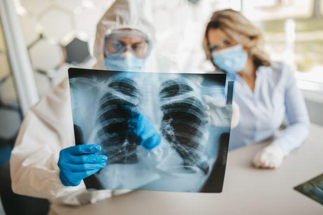 Covid-19, una radiografia può salvare la
