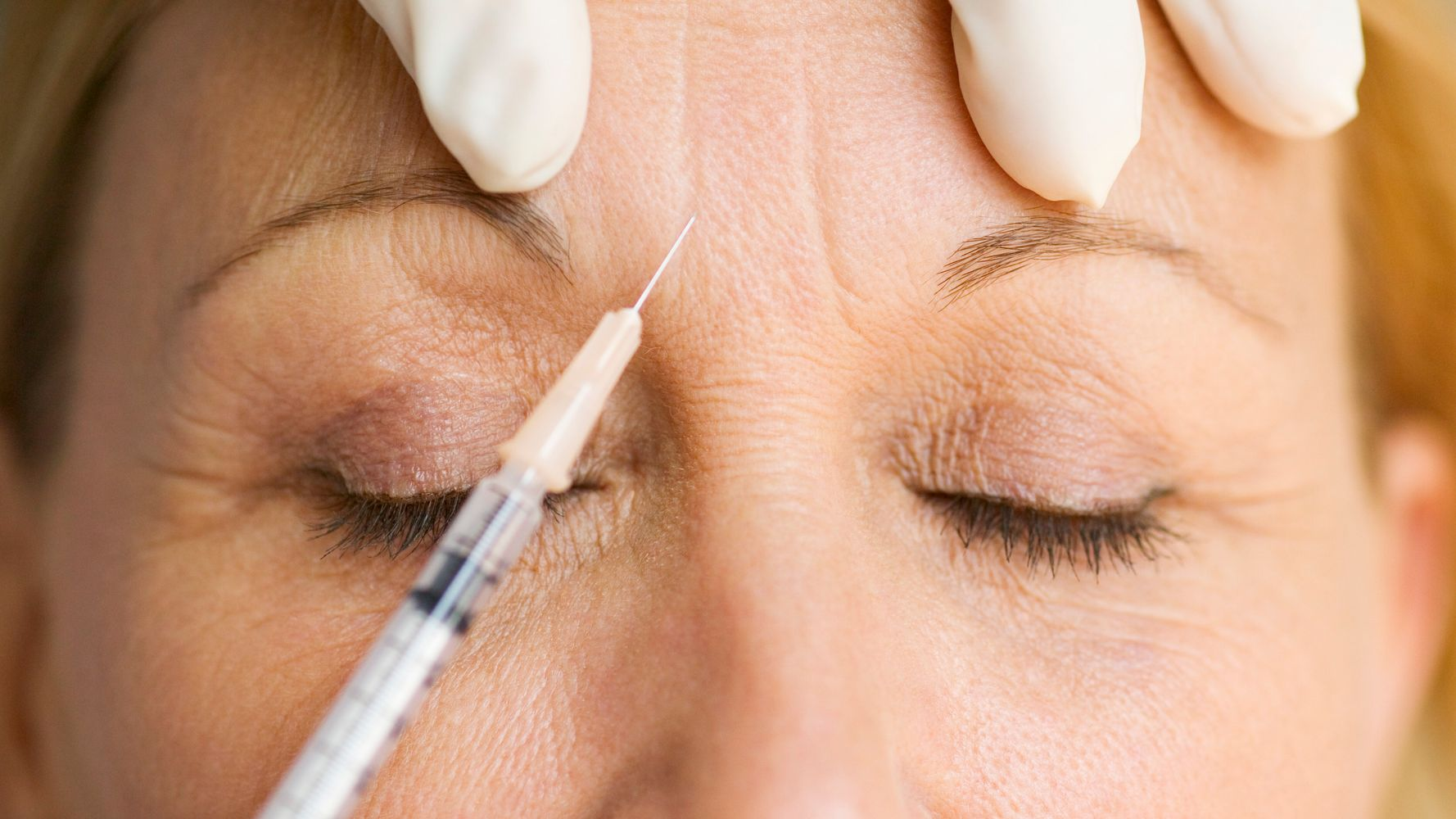 What Experts Say You Should Know About Getting Botox For The First Time