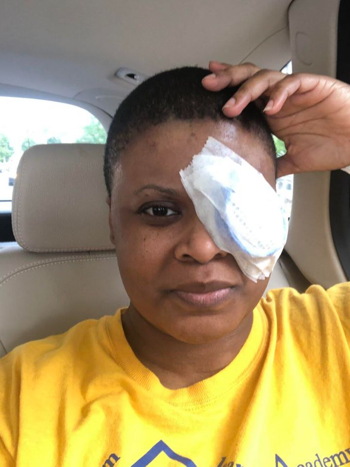 The author immediately following cataract surgery on Sept. 3, 2020. She developed a dense cataract following her COVID-19 inf
