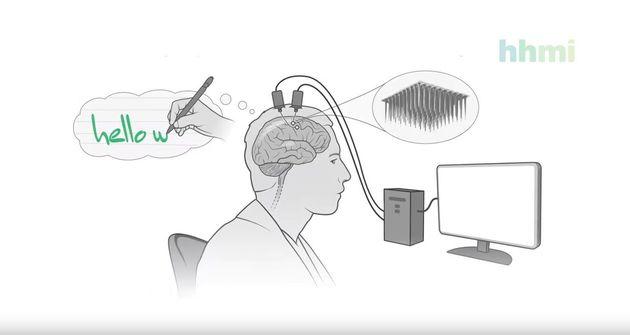 Έρευνα: Παράλυτος χρησιμοποιεί το μυαλό του για να σχηματίσει προτάσεις σε πραγματικό