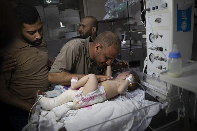 Omer Hadidi, de cinco meses, recibe cuidados en el hospital, tras el ataque a su casa en Shati, donde...