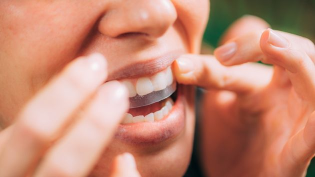 Teeth Whitening Kits Could Be Damaging Your Gnashers And Gums