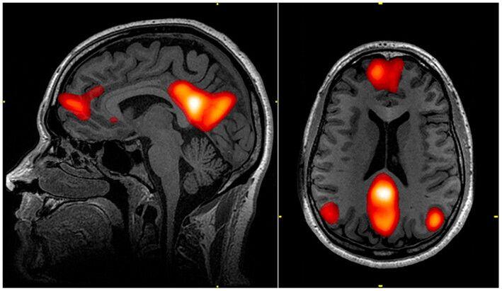 뇌의 기본모드네트워크 부위. 앞쪽과 뒤쪽 두 영역으로 나뉘어 있다.