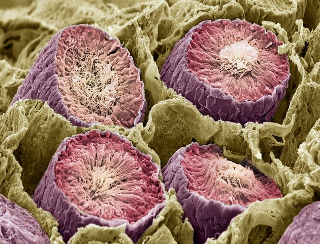 Production de sperme dans les testicules, vue au microscope