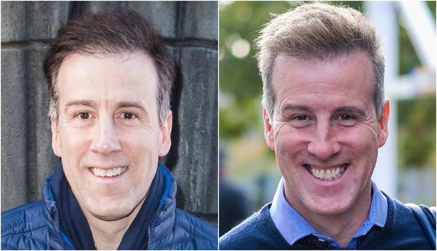 Anton Du Beke underwent a hair transplant in