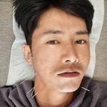 안면 마비되는 '구안와사' 발병으로 안타까운 소식 전한 오종혁이 공개한 치료