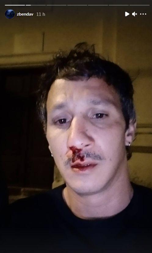 Benoît et son compagnon Mickaël ont été agressé en Corse le 14 juillet