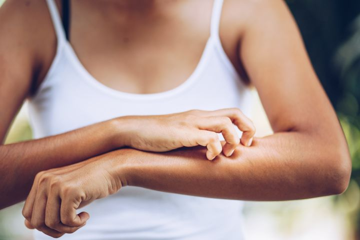 Experts say there are certain at-home methods you should follow before and after you get a bug bite.