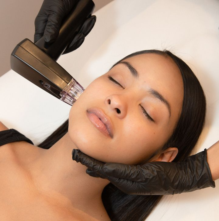 A patient undergoes remodeling, which combines microneedling and radiofrequency technology to tighten loose skin.