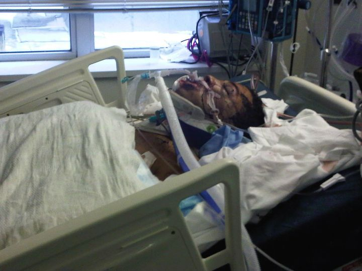 The author at the Elmhurst Trauma Hospital in New York City, approximately 12 hours after he was struck by a subway train in December 2010.