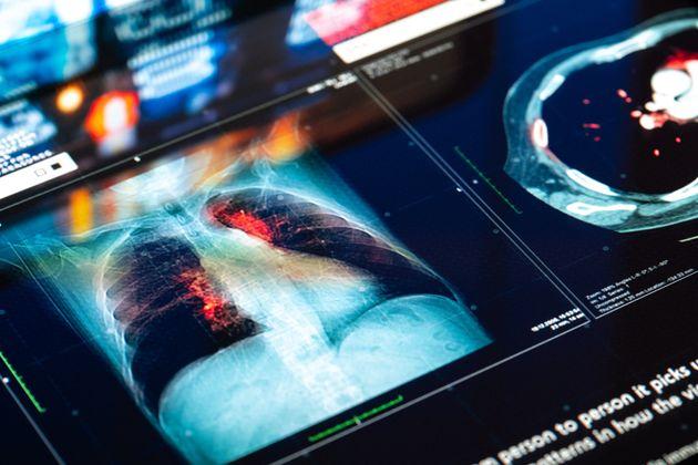 Τεχνητή νοημοσύνη ανιχνεύει πρώιμα στάδια καρκίνου των πνευμόνων ένα χρόνο πριν την