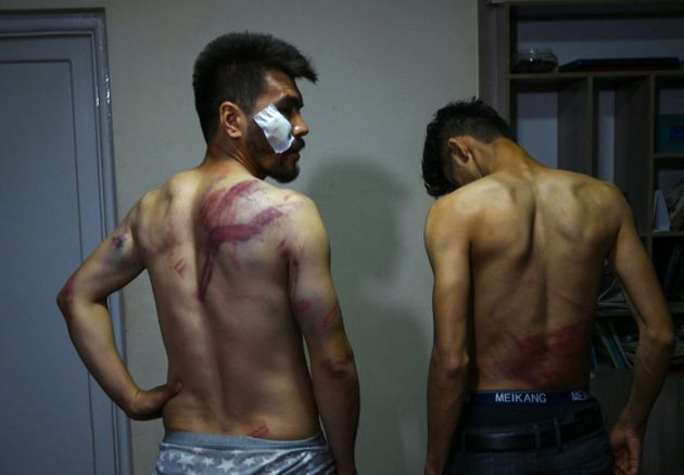 Afghan newspaper Etilaat Roz journalists Nematullah Naqdi (L) and Taqi Daryabi claim the Taliban beat...