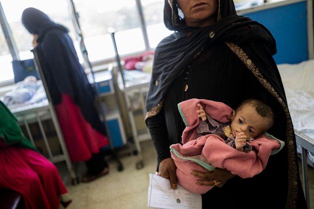 Samina, de cinco meses, con desnutrición severa, en brazos de su madre, en el hospital infantil...