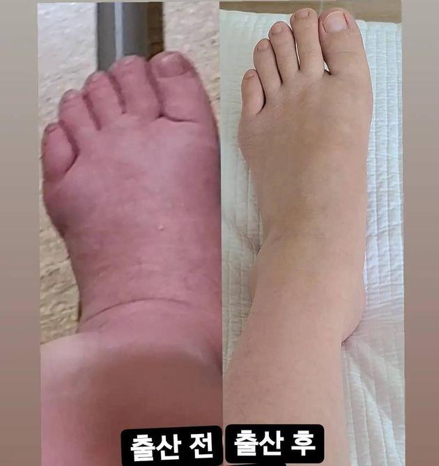 출산 전후로 달라진 황신영의 발