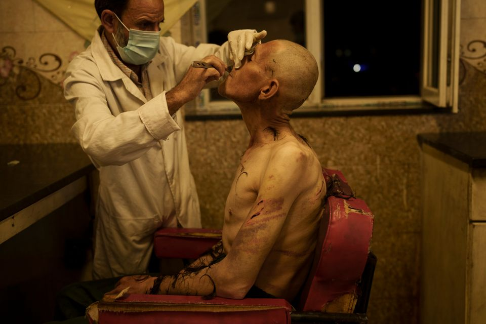 A drug user detained during a Taliban raid is shaved after arriving at Avicenna Medical Hospital for...