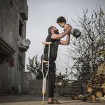 Bimbo e papà senza arti: la foto simbolo del dramma